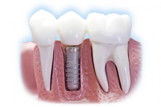 implantologija-2-523x349